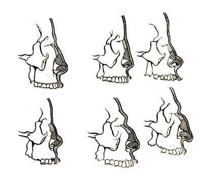 Формы нос