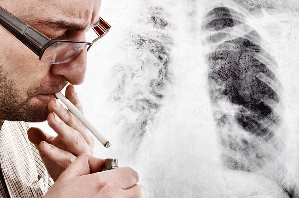 Чем опасна эмфизема легких и каковы ее симптомы