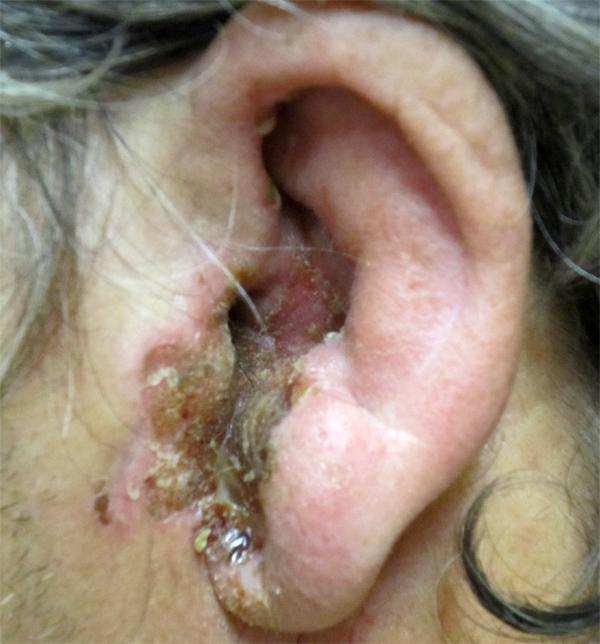 Грибковые инфекции ушей