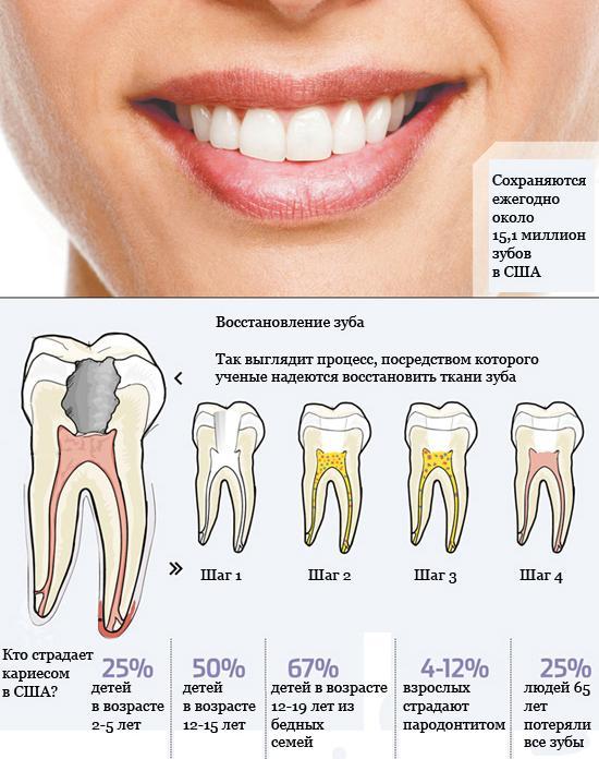 Как убить нерв зуба в домашних условиях