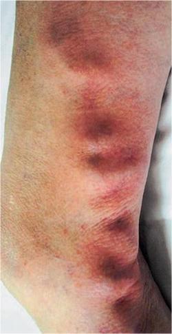 Поверхностный тромбофлебит большой подкожной вены