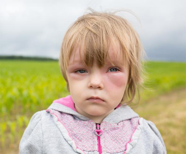 Преднизон: побочные эффекты у детей