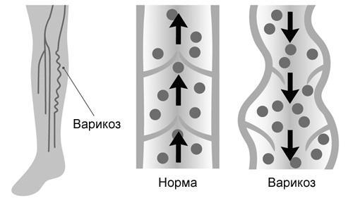 Лечение варикозного расширения вен ног