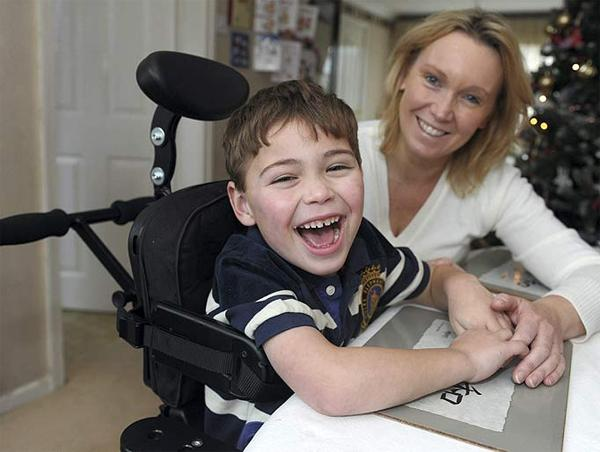 Симптомы детского церебрального паралича