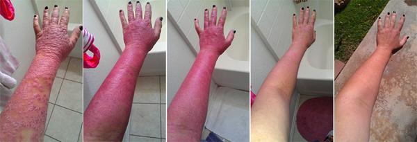 Биопсия кожи головы при псориазе