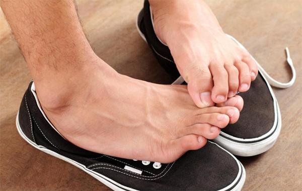 Как лечить потливость ног?
