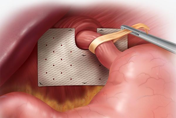 Методы лечения грыжи пищеводного отверстия. Хирургическое вмешательство.