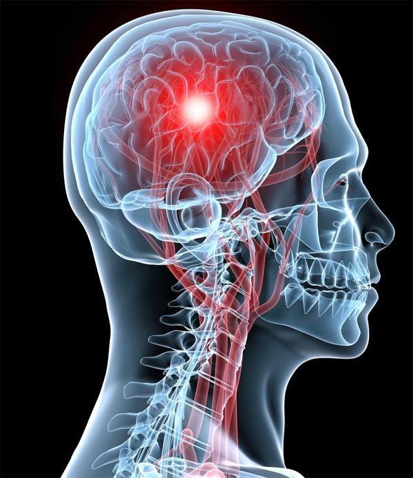 Каковы симптомы обширного инсульта