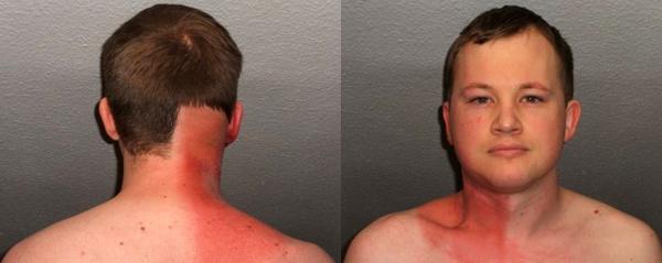 Как лучевая терапия при раке действует на кожу