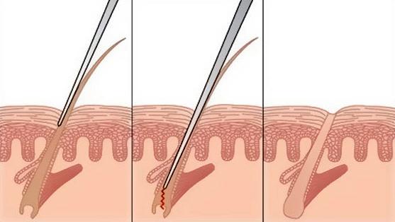 Удаление волос электролиз