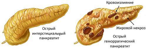 Острый панкреатит и беременность