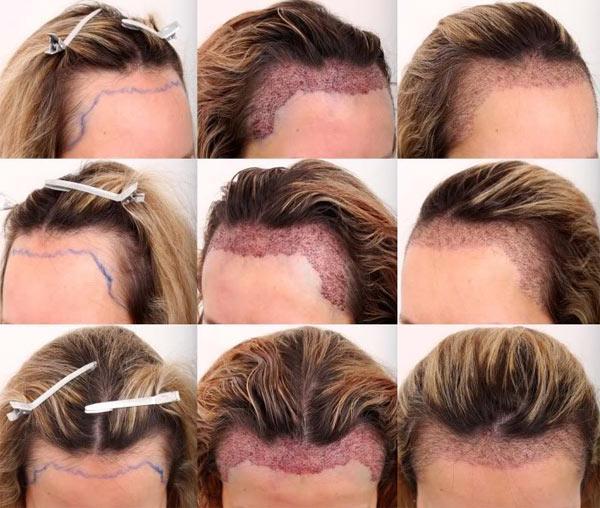 Как проводится пересадка волос