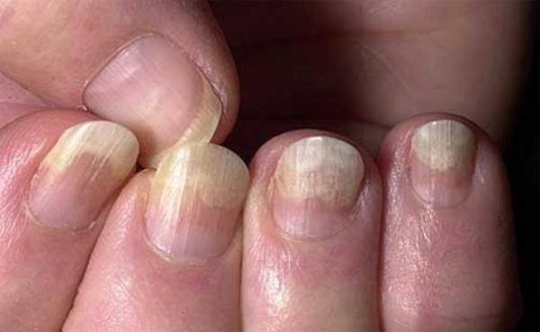 Как определить здоровье человека по ногтям