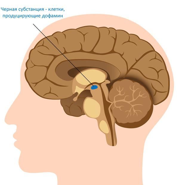 Абляция - хирургический метод лечения болезни Паркинсона