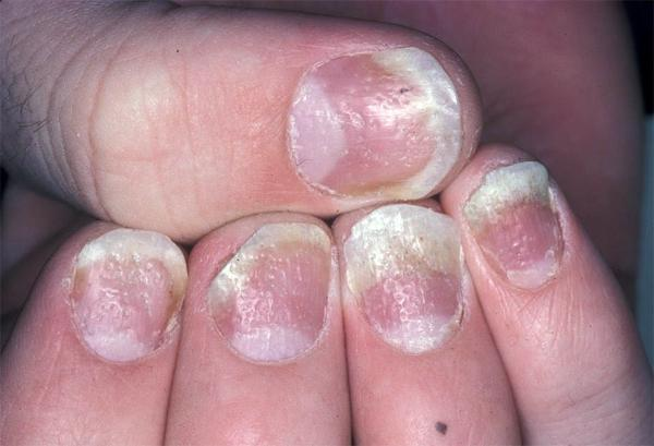 Симптомы псориаза