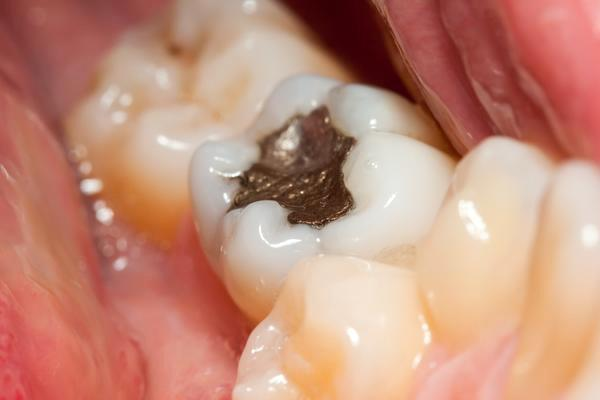 Инфекция зуба развивается в результате неправильного его пломбирования.