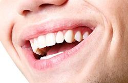 Наращивание зубов: имплантация