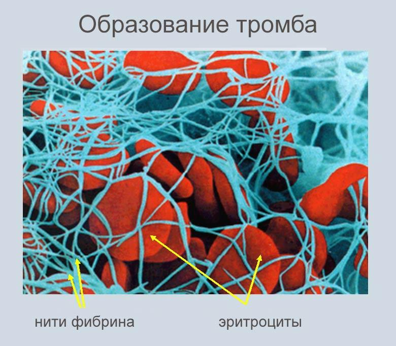 анализ на образование тромба перед операцией