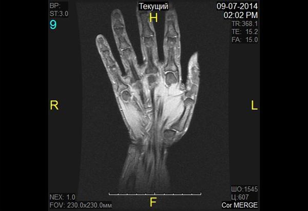 МРТ кистей рук: показания для проведения