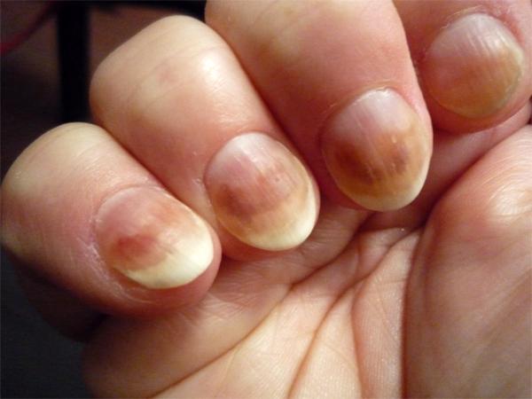 Эффективен ли противогрибковый лак для ногтей?