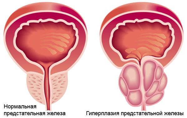 Симптомы увеличения предстательной железы