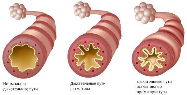 Какова взаимосвязь между кофеином и астмой?