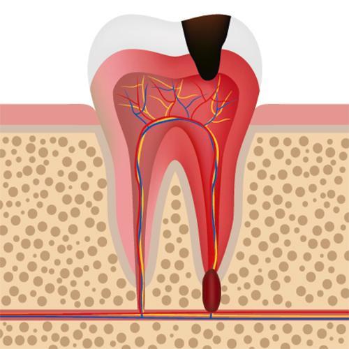 Лечение гранулемы зуба в Центре Приватной Стоматологии