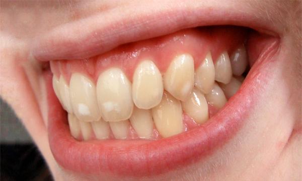 Отложения кальция на зубах