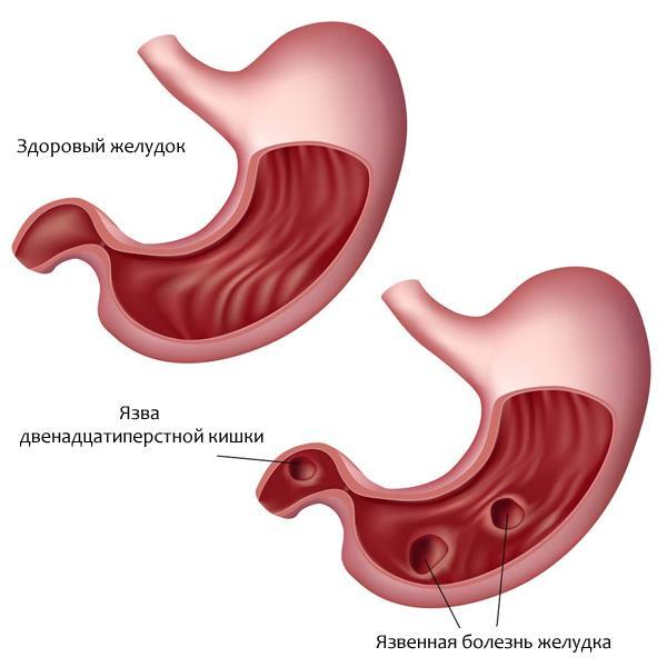 Лекарственные средства для лечения язвы