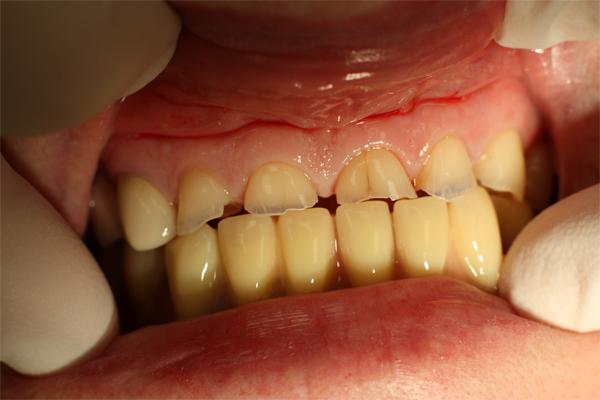 Что такое патологическое истирание зубов?