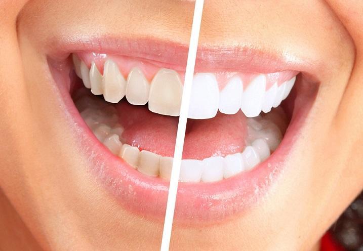 Эстетическая стоматология: методы и значимость