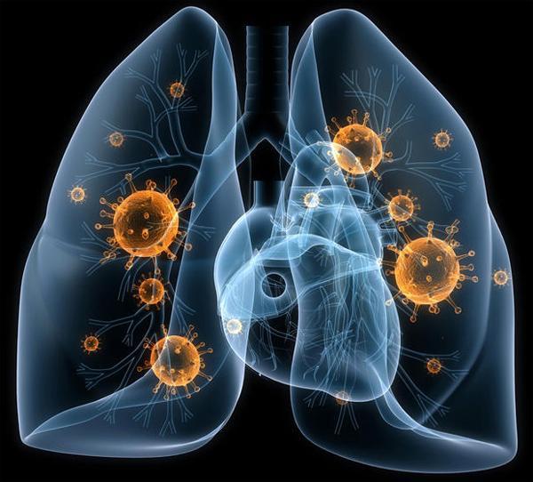 Что такое бактериальная пневмония?