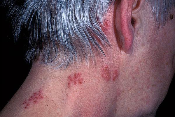 Как проявляется аллергия на пенициллин