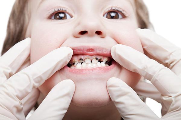 Как работает детский стоматолог?