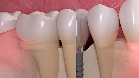 Имплантация зубов- сколько лет продержатся имплантаты?