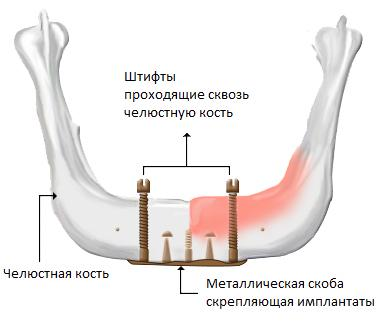Мини-имплантаты (МИ)
