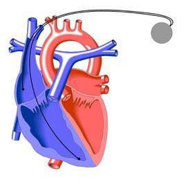 кардиостимулятор - леченме аритмии в Израиле