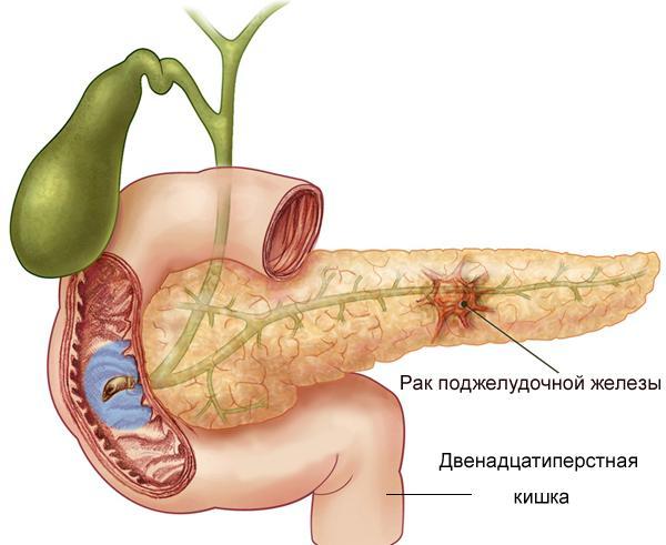 Насколько эффективен гемцитабин при лечении рака поджелудочной железы?