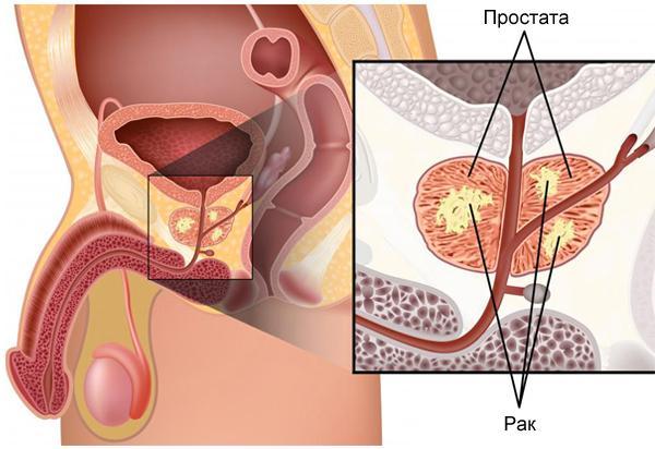 Лечение рака предстательной железы гормональной терапией