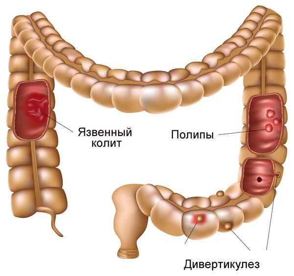 Лечение язвенного колита азатиоприном