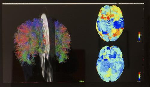 43 поразительных факта о головном мозге