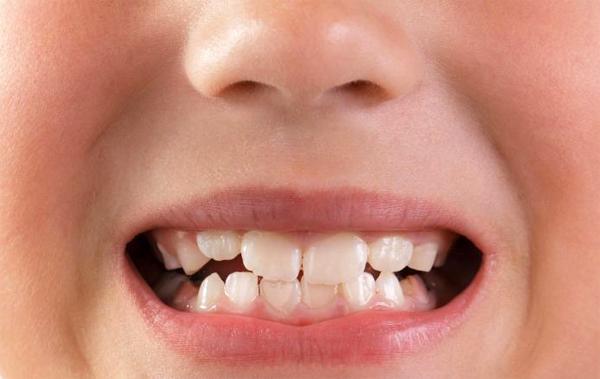 Почему ребенок скрежет зубами