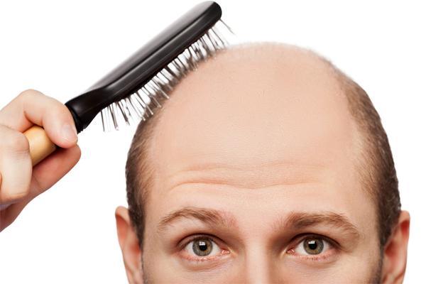 Один из симптомов аутоиммунного заболевания - резкое выпадение волос