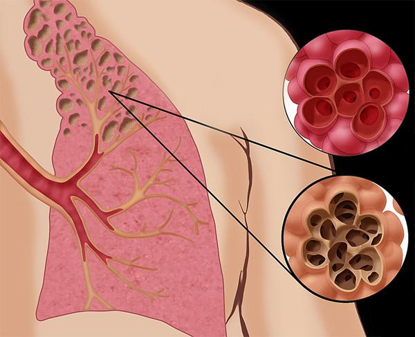 Чем опасна эмфизема легких и как ее лечить
