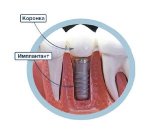 Имплантаты