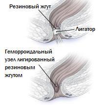 Лигирование резиновым жгутом