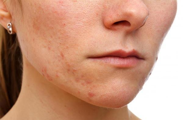 Какие проблемы с кожей вызывает диабет