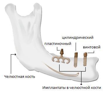 Внутрикостные (или эндооссальные) имплантаты