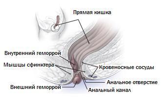 Анатомия геморроя