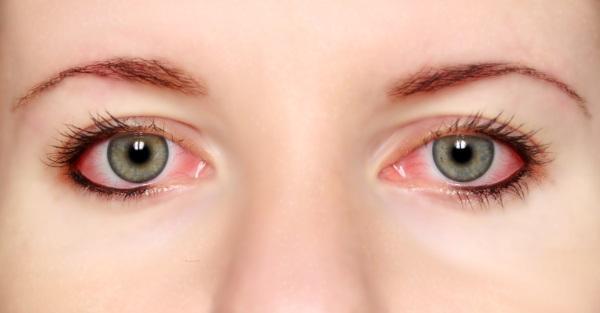 Симптомы аллергии на пенициллин